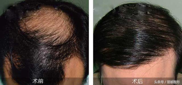 偏方到底能不能解决脱发?丽都整形医师为您支招
